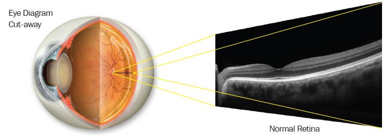 OCT Eye Diagram