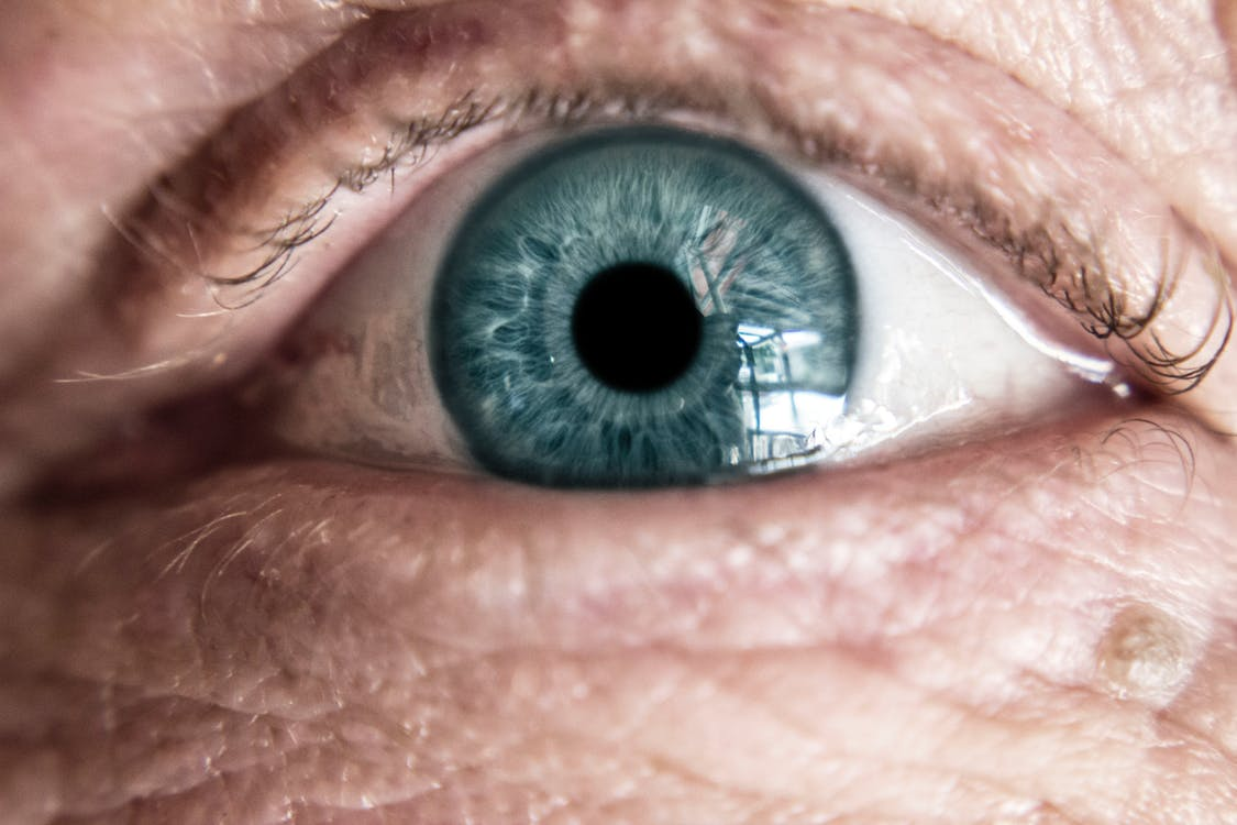 Eye of Person with Low Vision From Albinism