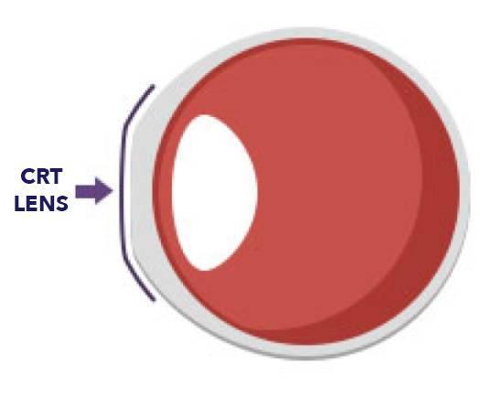 CRT Lens on eye