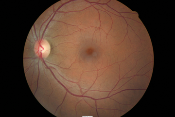 RetinalDrusen1