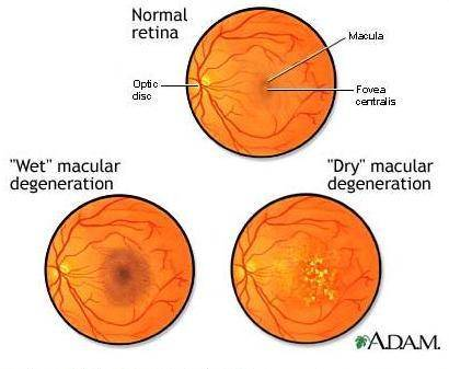 Vision Optique: Age Related Macular Degeneration