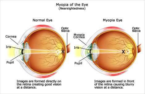 Image result for Myopia