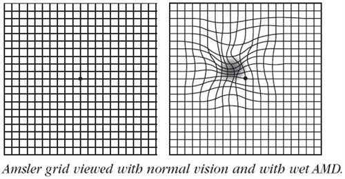 Amsler Grid for checking Macular problems
