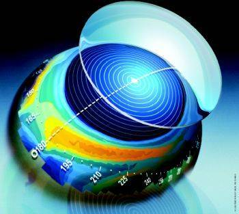 Contact Lens Measurement by Dr. Efrain Mascareno of Clear Vision Optometry in Chula Vista, CA